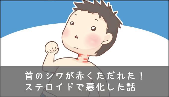 赤ちゃんの首のただれのアイキャッチ画像